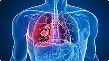 Saúde comemora Dia Mundial de Combate à Tuberculose com palestra na Câmara de Vereadores